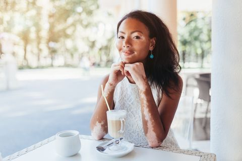Beautiful african girl with skin problems and sits in a cafe for a cup of hot tea