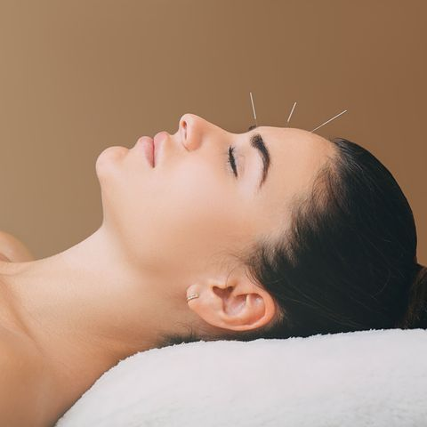 beautiful woman has a headache acupuncture treatment for migraines needles in the forehead of a woman closeup on a brown background