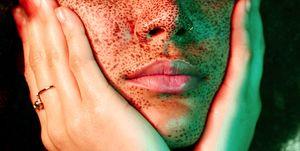Droge lippen - Wat te doen