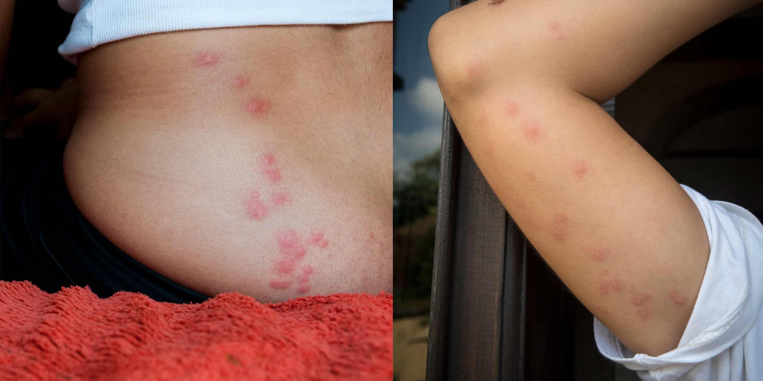 Bed Bug Bites Pictures Symptoms What Do Bed Bug Bites Look