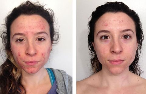 I Chose Holistic Dermatology Over Accutane, And This Is What