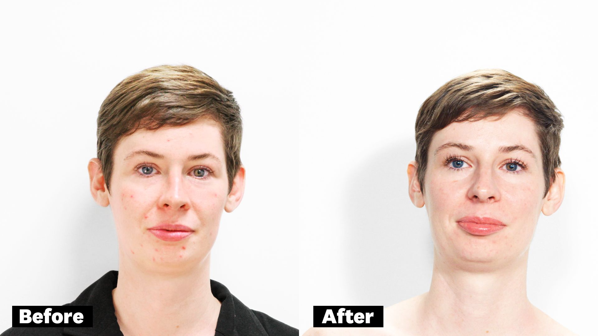 Glycolic Acid Peel for Acne - Here's What Happened When I
