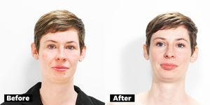 Jessie Van Amburg glycolic peel before and after