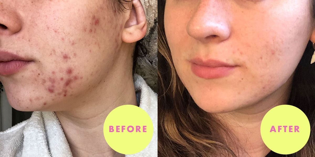 Seed Cycling and Acne: How Eating Seeds Basically Cured My Hormonal Breakouts