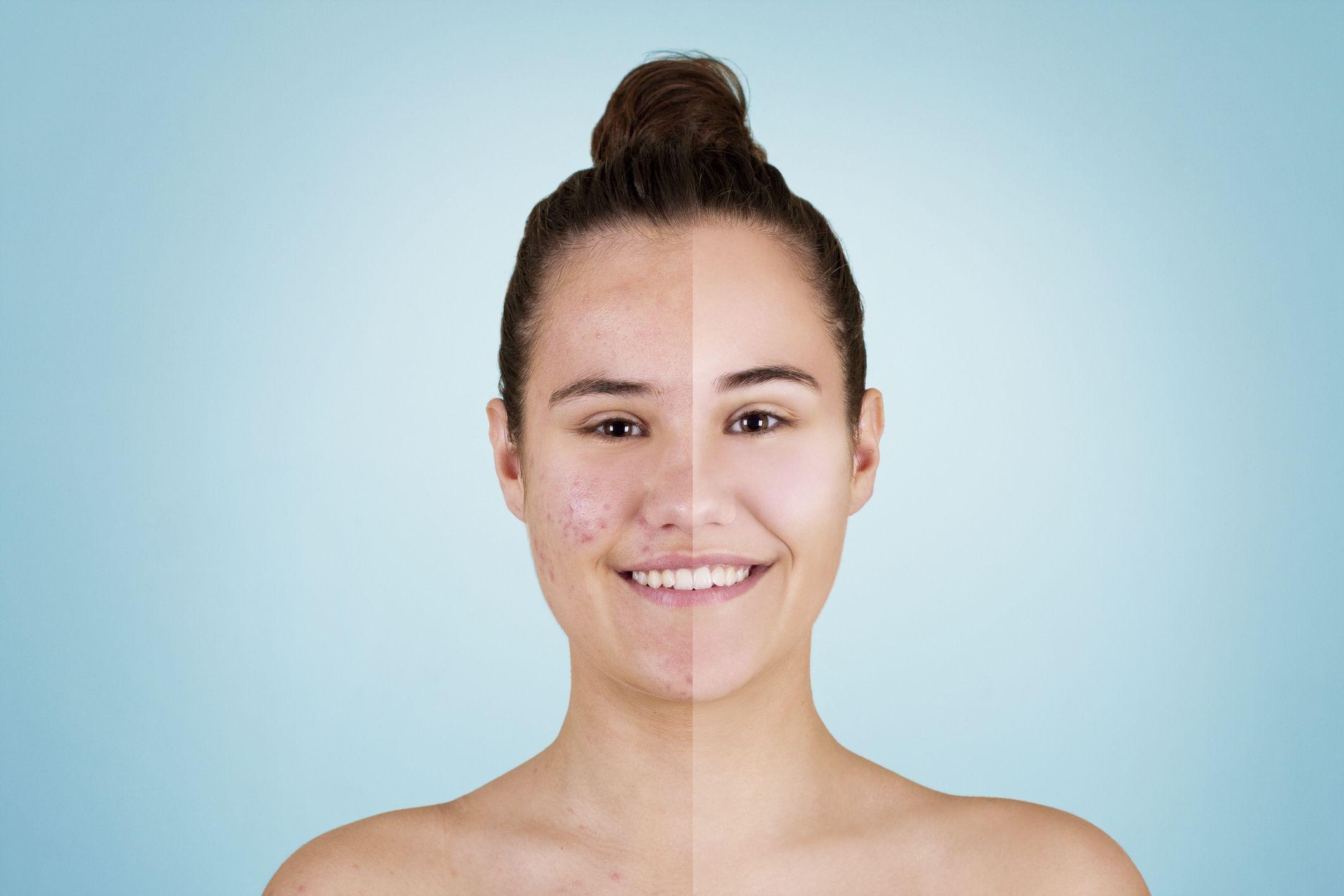 Facial rash after using acne medicine