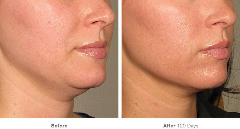 How Laser Skin Tightening Works - Radiofrequency Skin Treatment Details