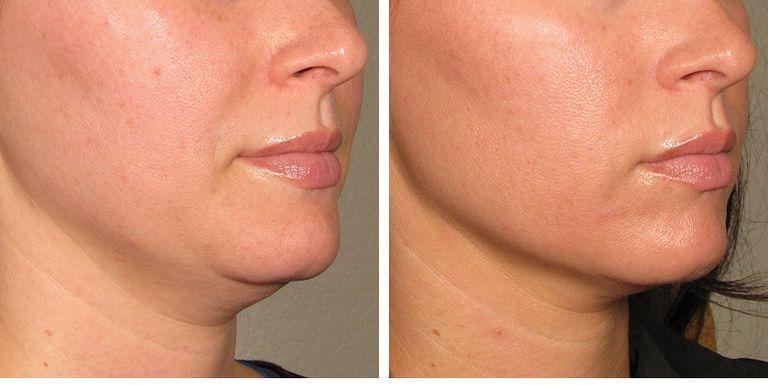 How Laser Skin Tightening Works - Radiofrequency Skin Treatment Details