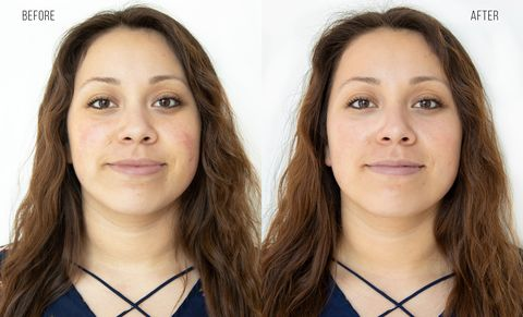 before and after the HydraFacial image