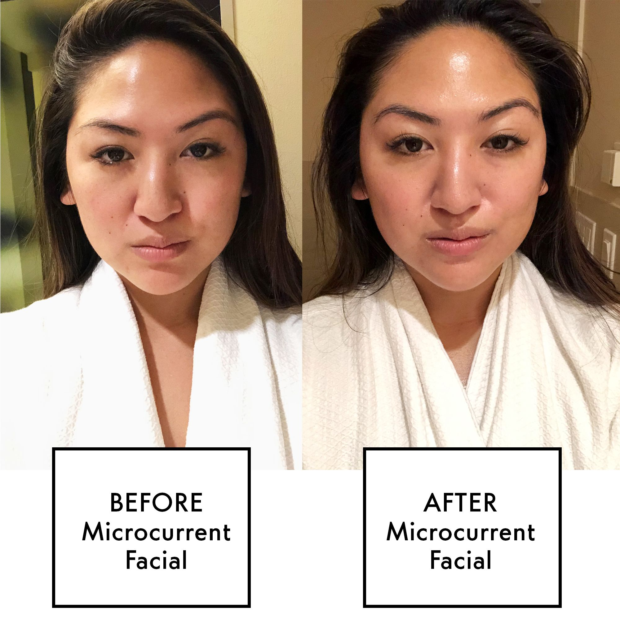 What Is a Microcurrent Facial? - Microcurrent Facial Review