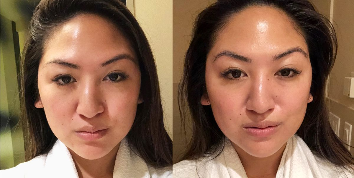 What Is A Microcurrent Facial Microcurrent Facial Review