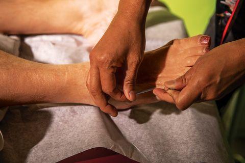 thuy nguyen, berkeley community acupuncture