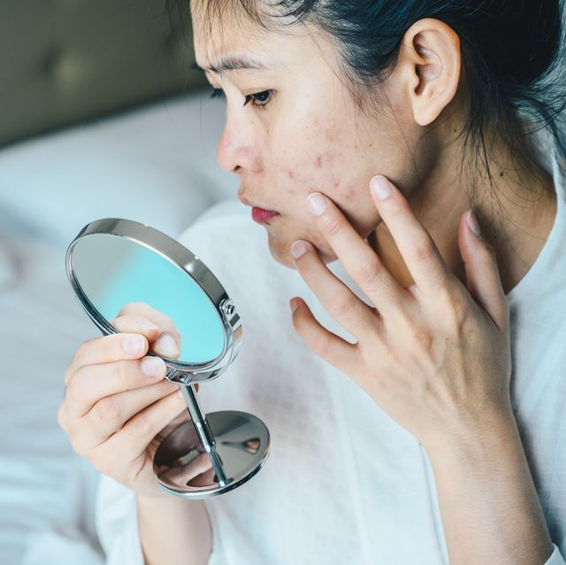 conceptual shot of acne  problem skin on female face