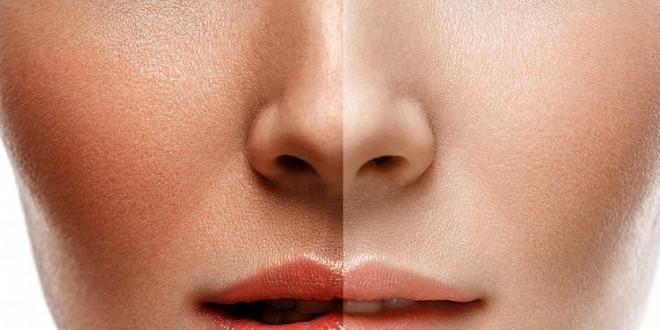 Beste zelfbruiner voor je gezicht