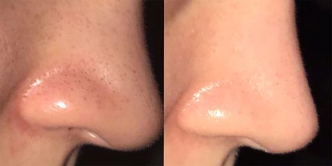 Skin, Nose, Cheek, Lip, Close-up, Chin, Neck, Flesh, Material property, Jaw,