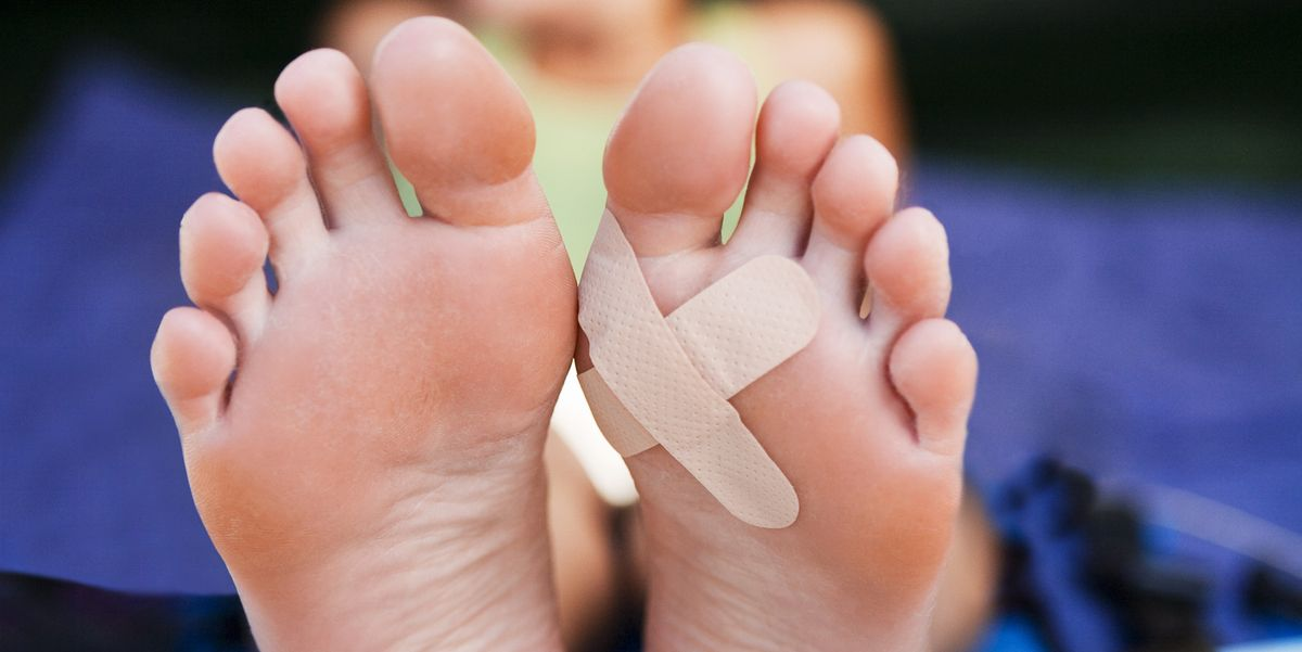 blisters on soles of feet treatment