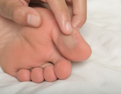 Blister Treatment | How to Get Rid of a Blister