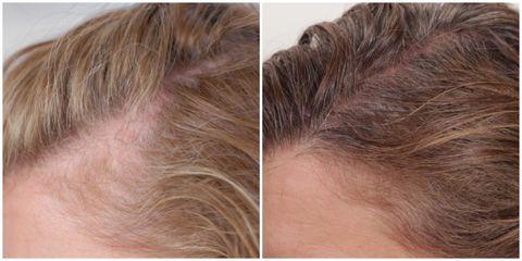 Hair, Skin, Forehead, Face, Hairstyle, Eyebrow, Blond, Chin, Hair coloring, Brown hair,