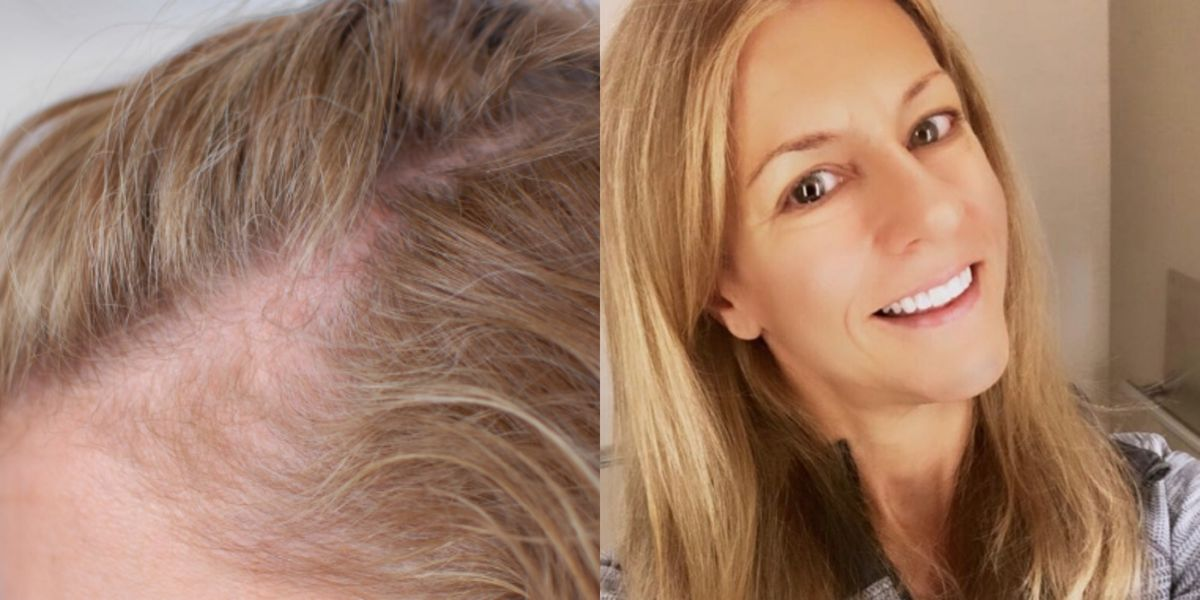 One Lifestyle Change Helped This Woman Reverse Her Hair Loss