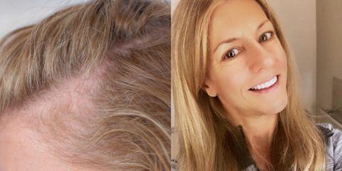 Face, Hair, Blond, Skin, Hairstyle, Nose, Chin, Forehead, Eyebrow, Cheek,