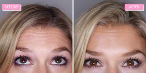 Botox review - everything you need to know