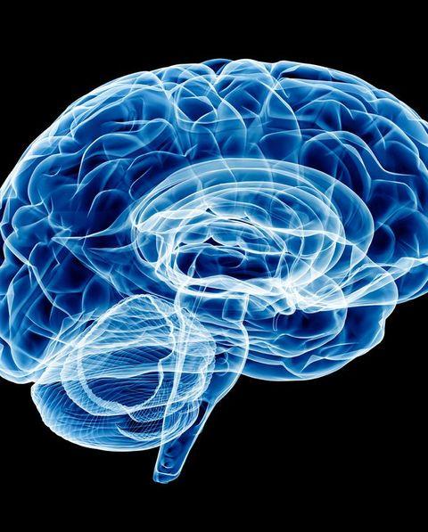 Brain X-ray (HUGE)