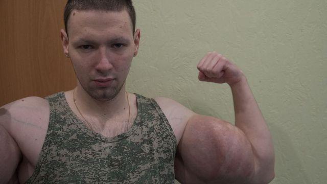 kirill tereshin, el popeye, ruso, muestra sus bíceps logrados de manera artificial