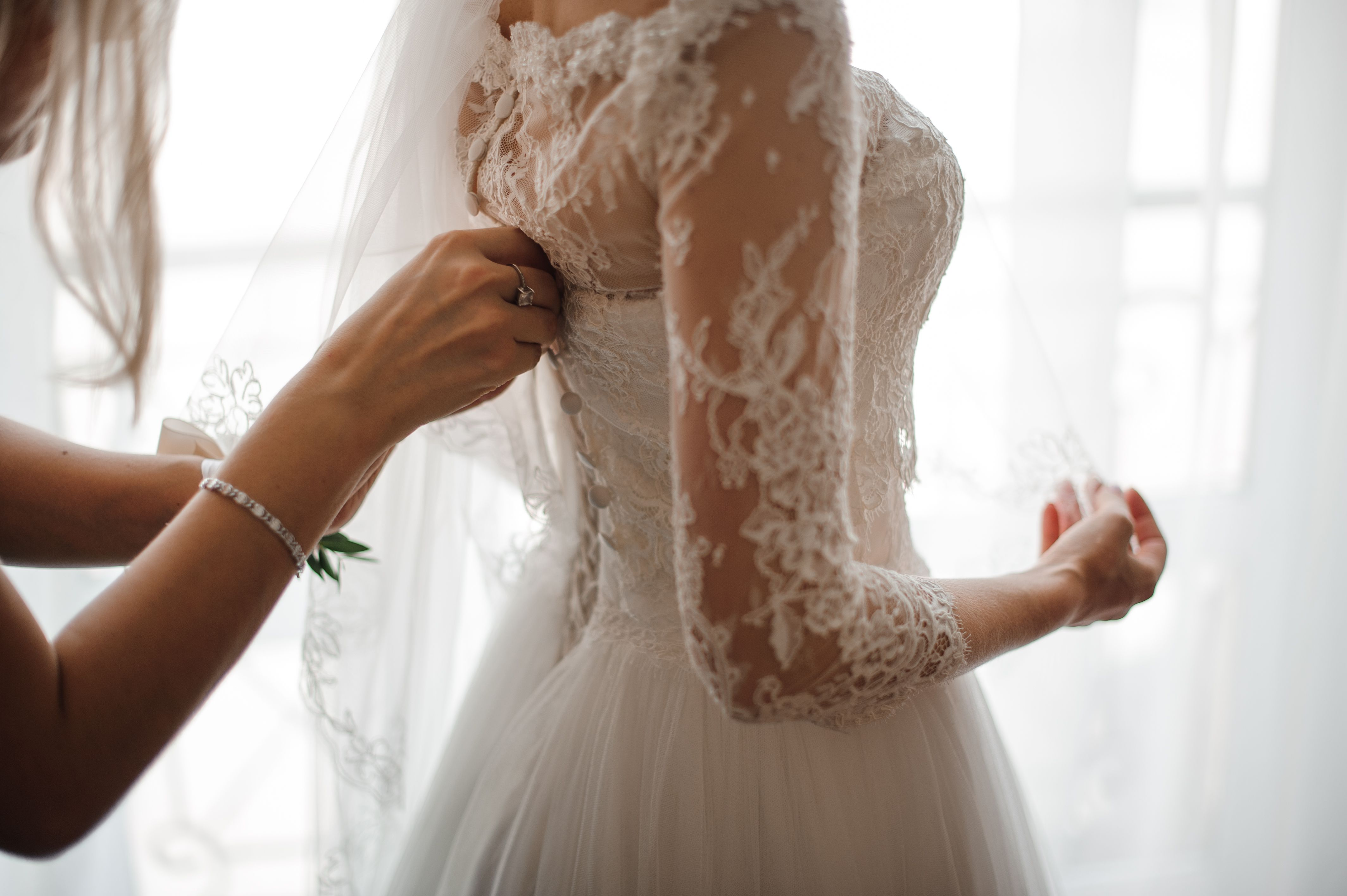 With bridal cosmetic surgery on the rise, here's what you need to know