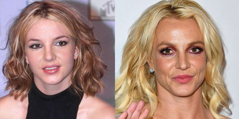 Plastic Surgery Before And After 9 Celebrities On What