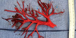 Bronchial Tree Blood Clot