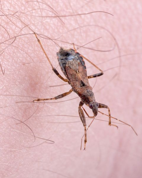 Deadly Kissing Bug Bites And Spreads Chagas Disease Through Poop