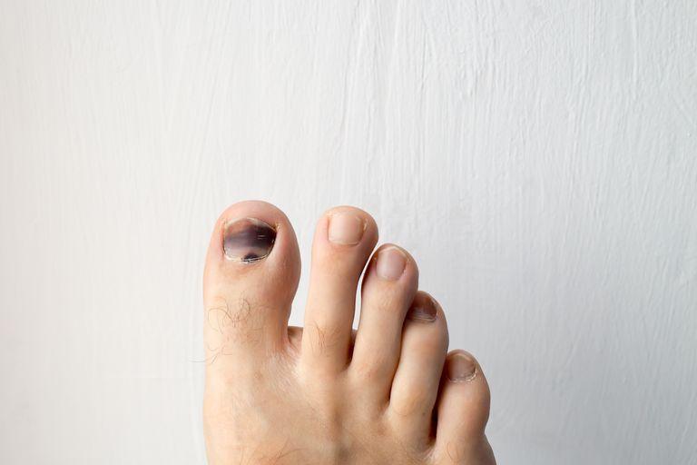 Kuku kaki