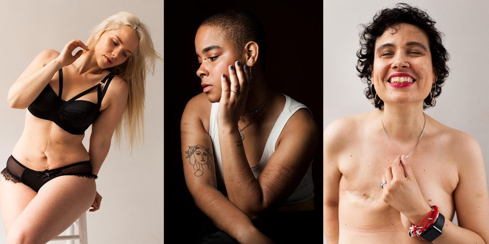 Photo Series Celebrates the Beauty and the Story Behind the Scars