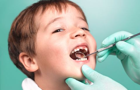 Tooth, Child, Mouth, Organ, Nose, Jaw, Human body, Smile, Tongue, Dental hygienist,