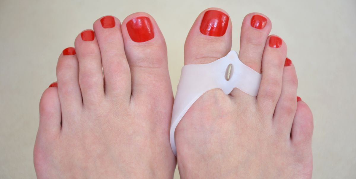 How to finally fix your bunions
