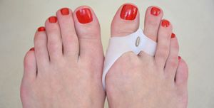 The best bunion treatment options