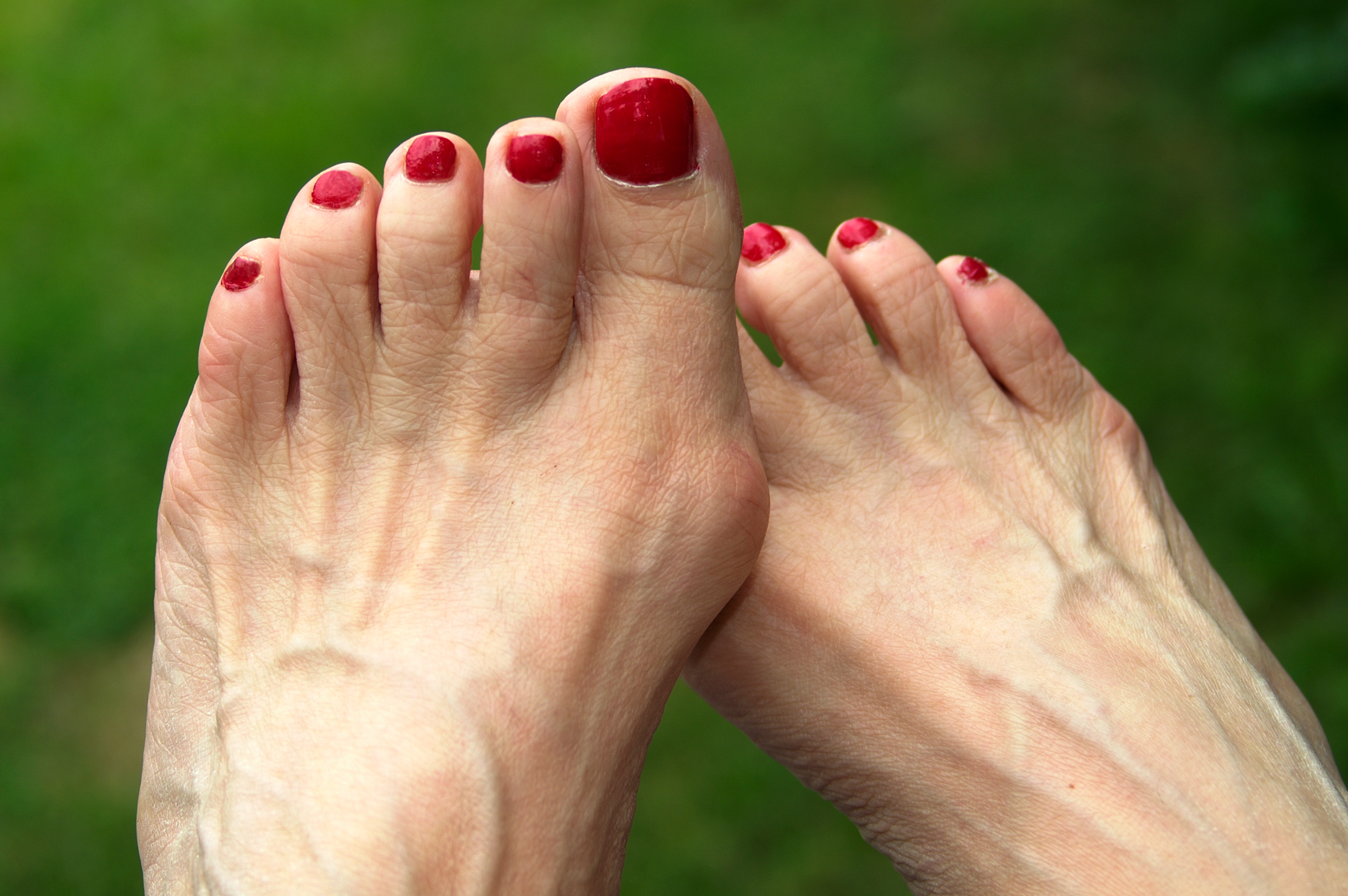 Why Do My Feet Hurt So Bad? 11 Causes