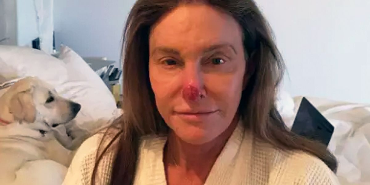 Caitlyn Jenner Posts A Pic Of Her Skin Cancer To Instagram Caitlyn Jenner Sun Damaged Nose