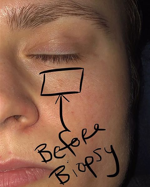 This Woman Thought She Had a Pimple Under Her Eye—But It Turned Out to Be Skin Cancer