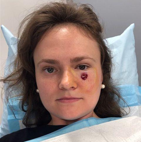 Gibson Miller Skin Cancer Pimple