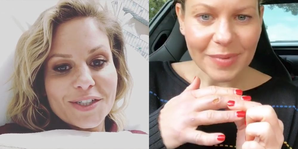 See Candace Cameron Bure's Hand Injury Days After Being Hospitalized