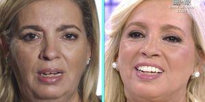 La hija pequeña de María Teresa Campos se sometió a un lifting facial que ha provocado cientos de comentarios, buenos y malos, entre sus compañeros de 'Sálvame'.