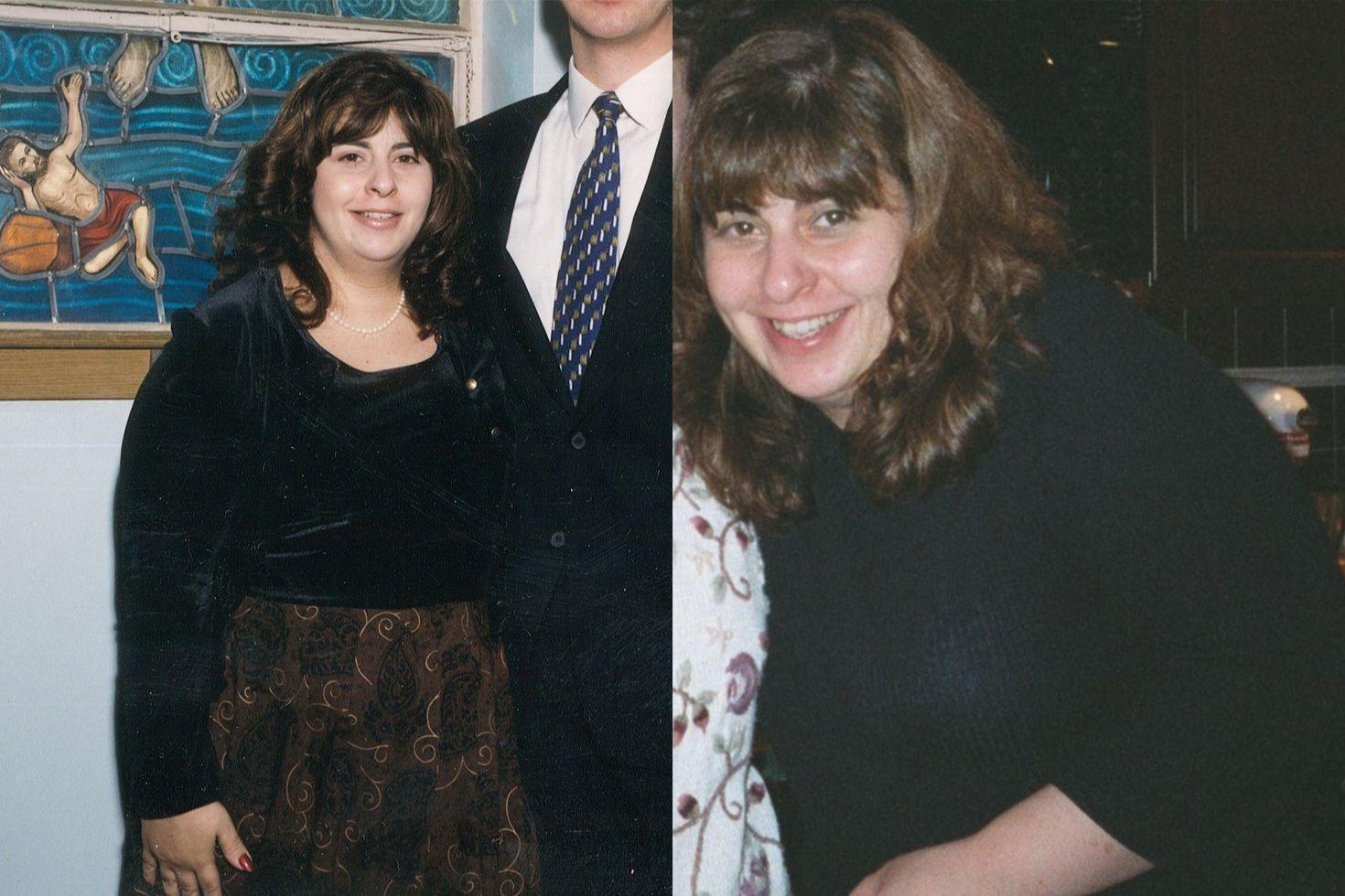 Charlene Bazarian before photo