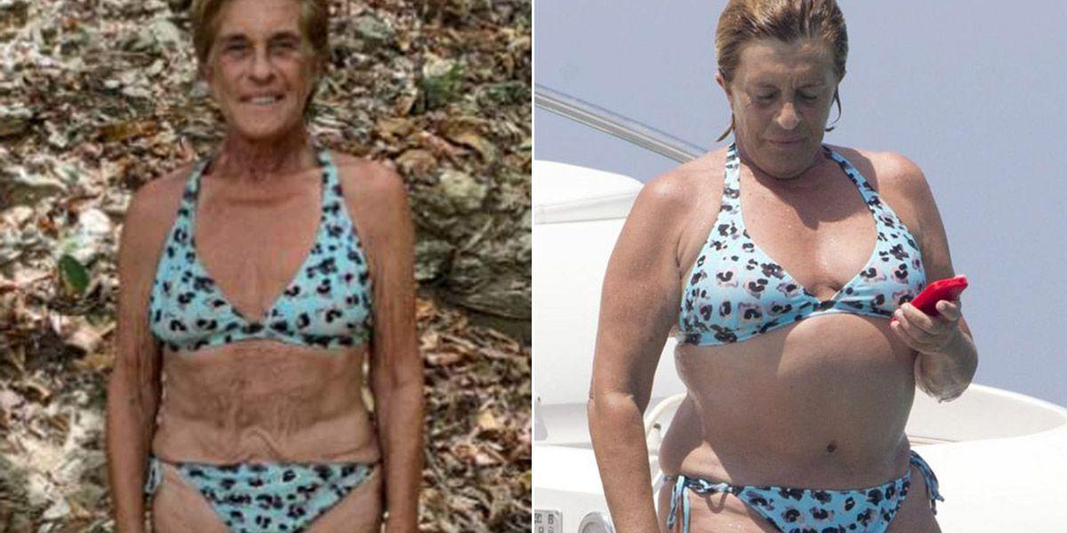 perdida de peso chelo supervivientes
