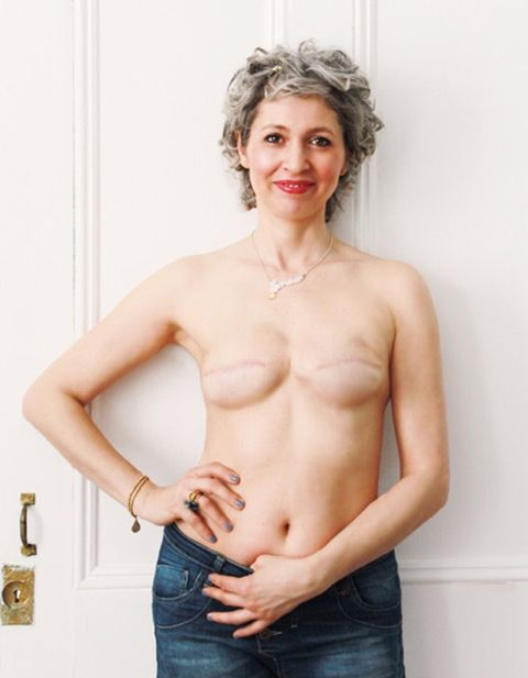 No reconstruction after mastectomy