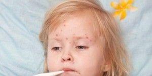chicken-pox-300x239.jpg
