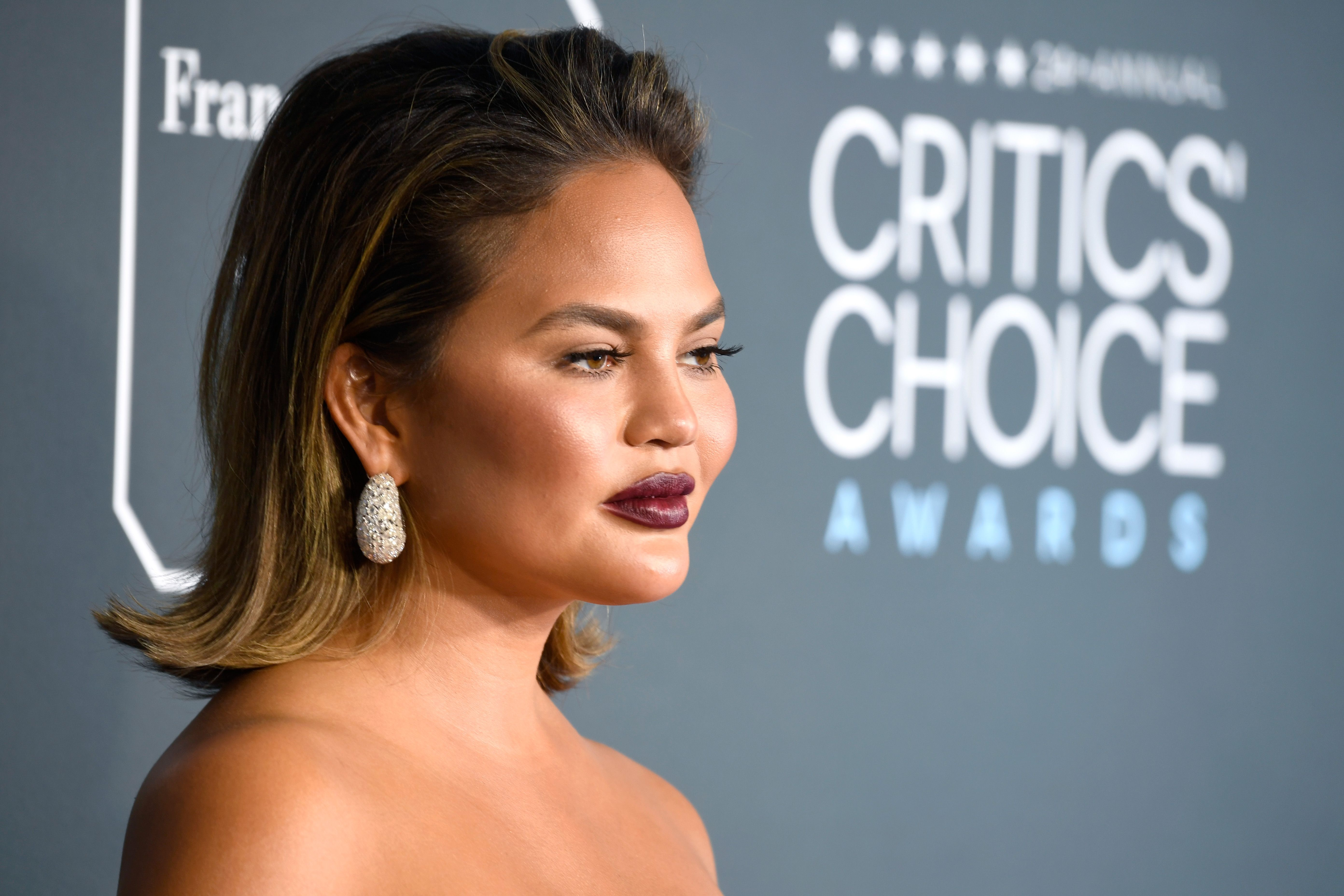 Chrissy Teigen keeps it real by showing us her acne on Instagram