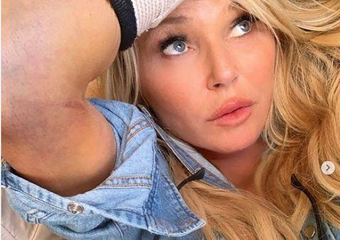 Christie Brinkley broken arm photos