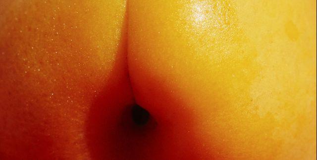 Hole pimple near anus large painful