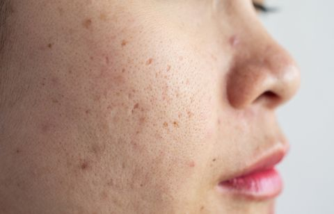 close up of asian woman face has problems with aging skinacne scar on her face