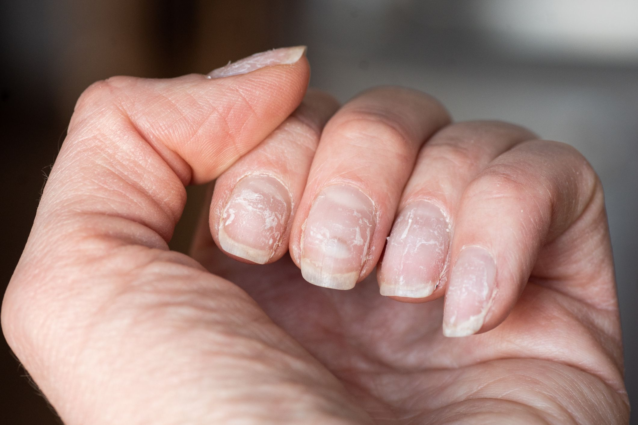 Why Are My Nails Peeling   9 Causes of Flaking, Peeling Nails